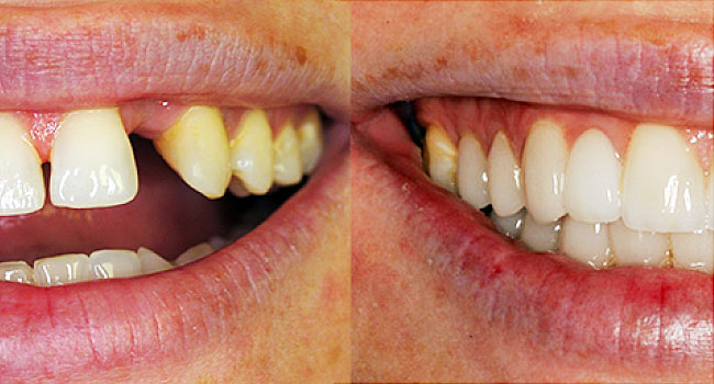 Damaged teeth: how to find a smile?